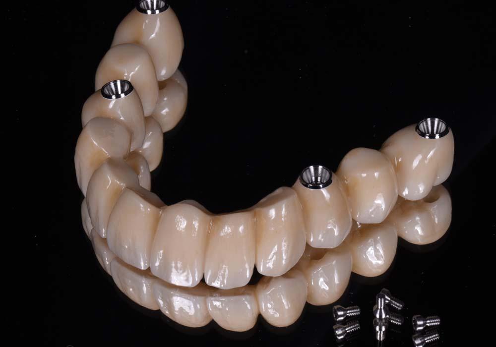 implant full arch