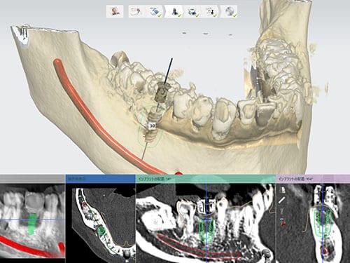 臼歯部プランニング